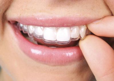 Ortodòncia invisible Invisalign® salut dental