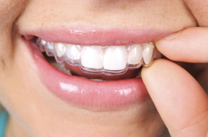 Ortodoncia invisible con Invisalign®