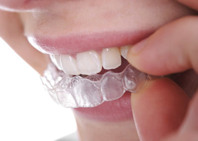 Planxes transparents o aligners