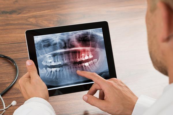 Tratamientos dentales con la última tecnología