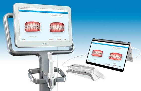 Última tecnología con el escaner intraoral iTero para Ortodoncia invisible con Invisalign para smartphone