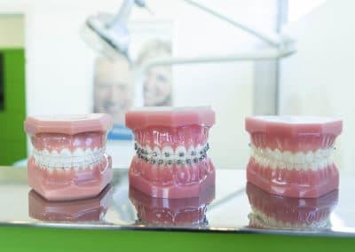 Moldes con tres tipos de ortodoncia, convencional, estética e invisible