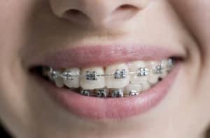 Boca con ortodoncia convencional de braquets