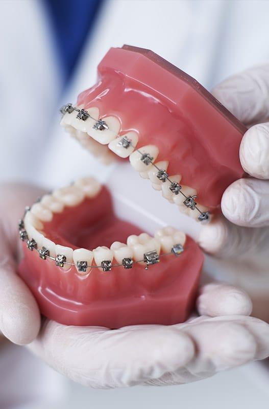 Ortodoncia con braquets tienen urgencias, la ortodoncia invisible no