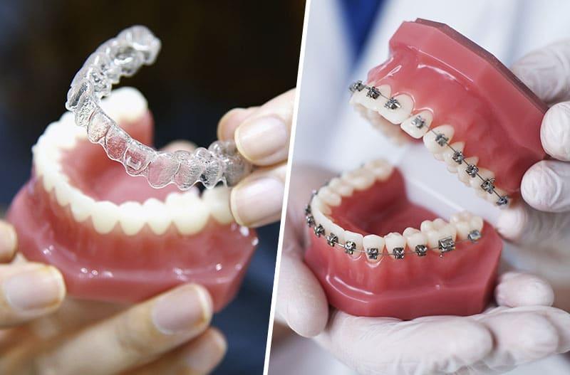 Urgencia ventajas ortodoncia invisible respecto ortodoncia convencional