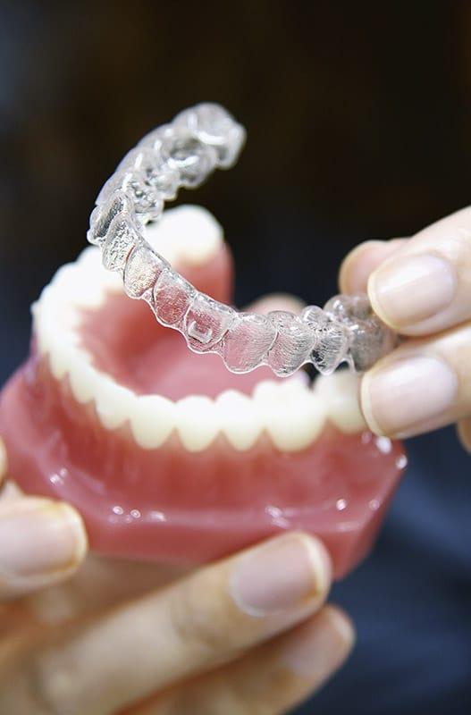 Ortodoncia invisible Invisalign tiene ventajas respecto a la ortodoncia con braquets