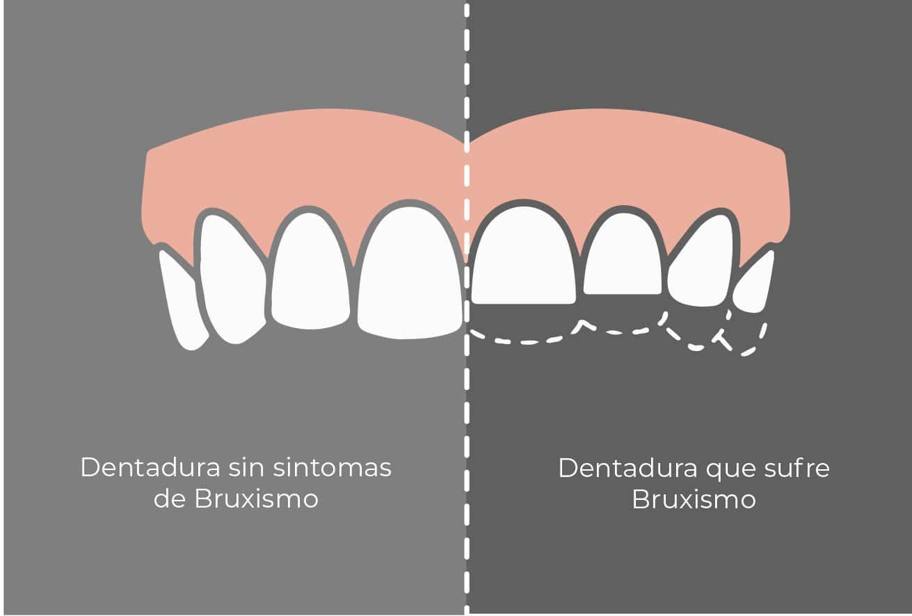 Ejemplo de Dentadura con y sin síntomas de bruxismo