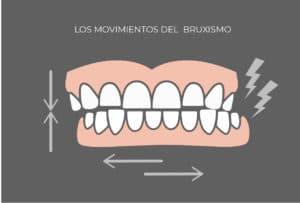 Movimientos de la dentadura con bruxismo