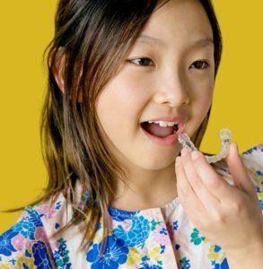 Invisalign es la solución definitiva en ortodoncia para todas las edades