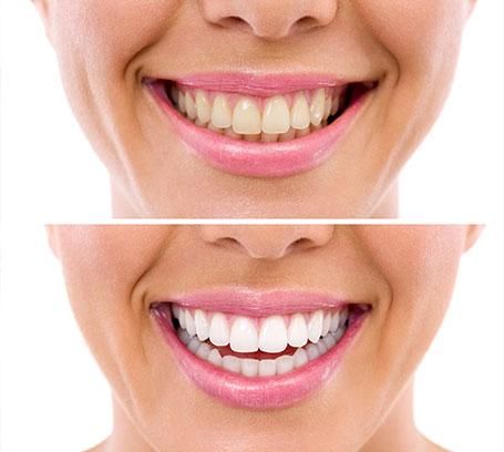 Què és un blanquejament dental